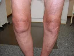 Knee with Varus deformity